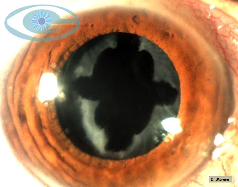 Capsulotomía anterior  láser Nd