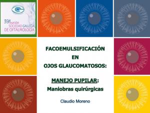 facoemulsificacion en ojos glaucomatosos