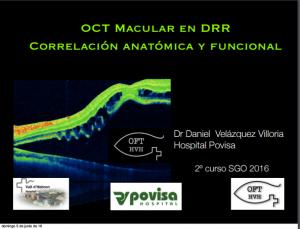 oct-macular-en-drr-correlacion-anatomica